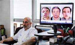 世界首例!法国男子两次换脸手术 三张脸背后却是与肿瘤顽强斗争