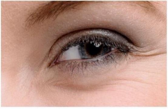 眼角鱼尾纹用什么眼霜好 分享去鱼尾纹的最好方法