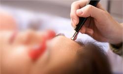 美容需求不断增长 助力激光美容仪器行业快速发展