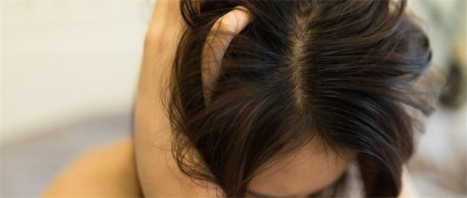 脱发一族有救了?科学家或将找到生发新方 能促进受伤皮肤毛发新生