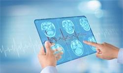 智慧健康产业发展空间巨大 千亿级规模市场静启