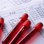 2019年中国血液制品行业市场分析:全球最严管控,研发懈怠导致竞争力不强