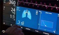 呼吸机,对中国制造到底是怎样的机会?