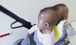 2歲連體雙胞胎在意大利成功分離!此前頭顱后部相連共用血管,為世界最罕見復雜案例