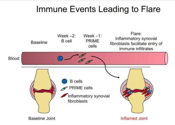 新細胞預測類風濕性關節炎發作