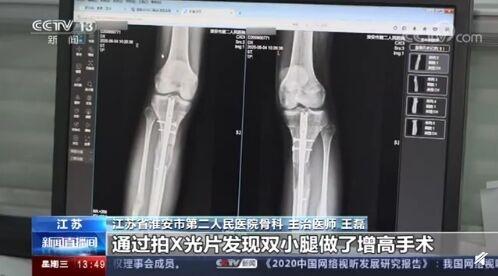 断骨增高手术严禁用于美容项目