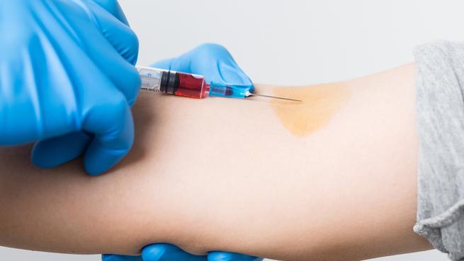 疯狂!英国竟主动感染健康人群以测试疫苗,试验预计将于明年年初启动