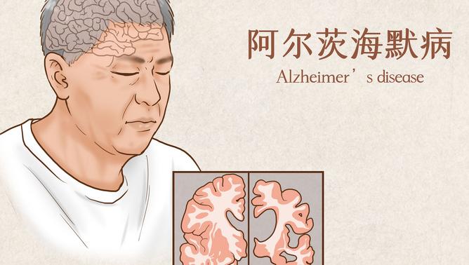 新研究:阿尔茨海默症或许并非单一疾病,科学家发现其分属6种亚型