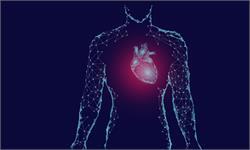 心臟病不再可怕:可以提前好幾年預測,只需一張X光片