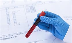 """机器学习揪出自闭症""""代言人""""!血液中的蛋白标记物有助于早期诊断"""