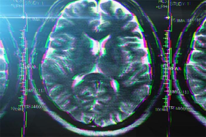 一个人每天喝咖啡,他的大脑发生了这样的变化