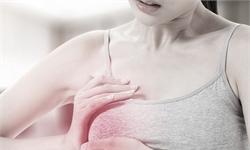 乳腺癌的帮凶!塑料与油漆中的光引发剂会促进乳腺肿瘤生长
