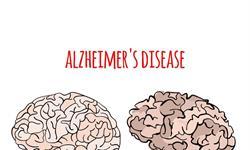 研究新发现!肝脏中产生的蛋白质可能会导致阿兹海默症,改变饮食习惯很重要