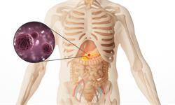 新研究发现炎症与胰腺癌之间的联系——存在突变KRAS可导致胰腺癌