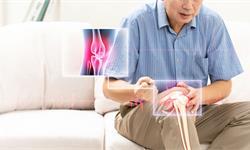 關節炎患者易患心臟問題,科學家推出相應治療方法