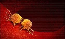 荒唐!山东某医院发表SCI论文,竟然在女性中研究前列腺癌