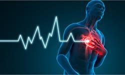 """研究揭示导致肥厚型心肌病的新原因,与""""ALPK3""""变异基因有关"""
