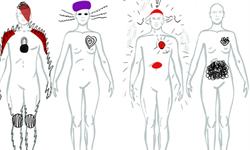 《柳叶刀》子刊:心理学家首次描绘精神病患者的幻觉身体地图